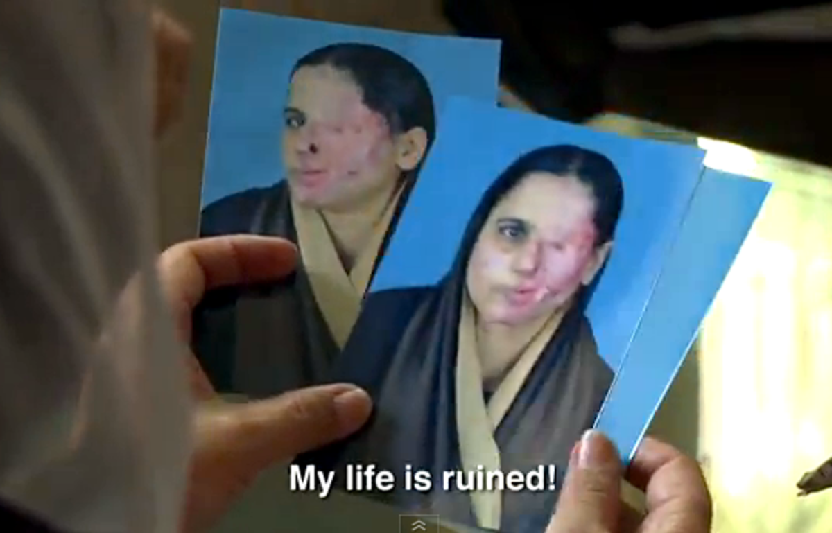 """A still shot from the documentary """"Saving Face"""". Zakia holds photos of her disfigurement by acid attack as she explains how her attacker (her husband) has not yet been punished."""