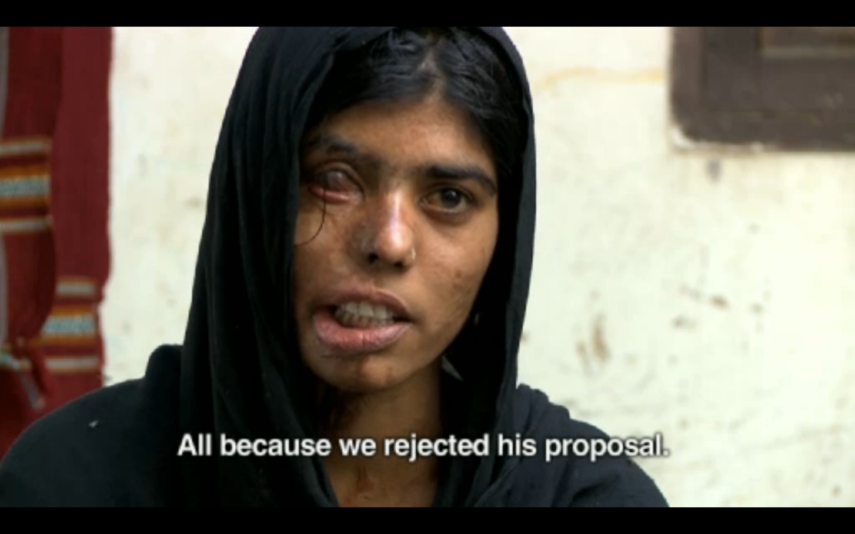 This woman was attacked with acid twice (once on her shoulder and later on her face) for rejecting a marriage proposal.