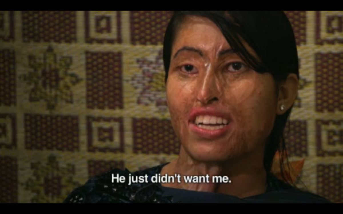 This woman's husband threw acid on her while she slept, simply because he didn't want her anymore.