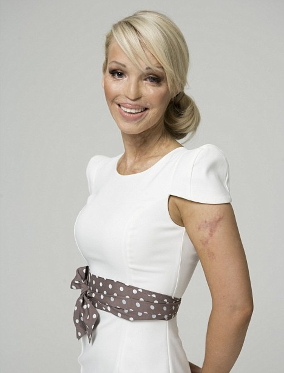 Katie Piper, an acid attack victim in the UK, after several surgeries and cutting-edge reconstruction to improve the look and mobility of her face. Most victims do not have access to such treatment.