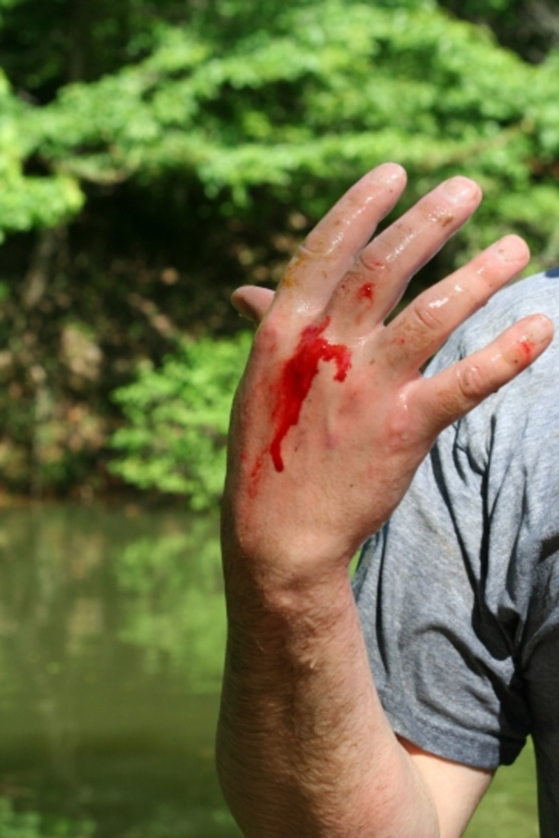 Bit by a Catfish during Noodling