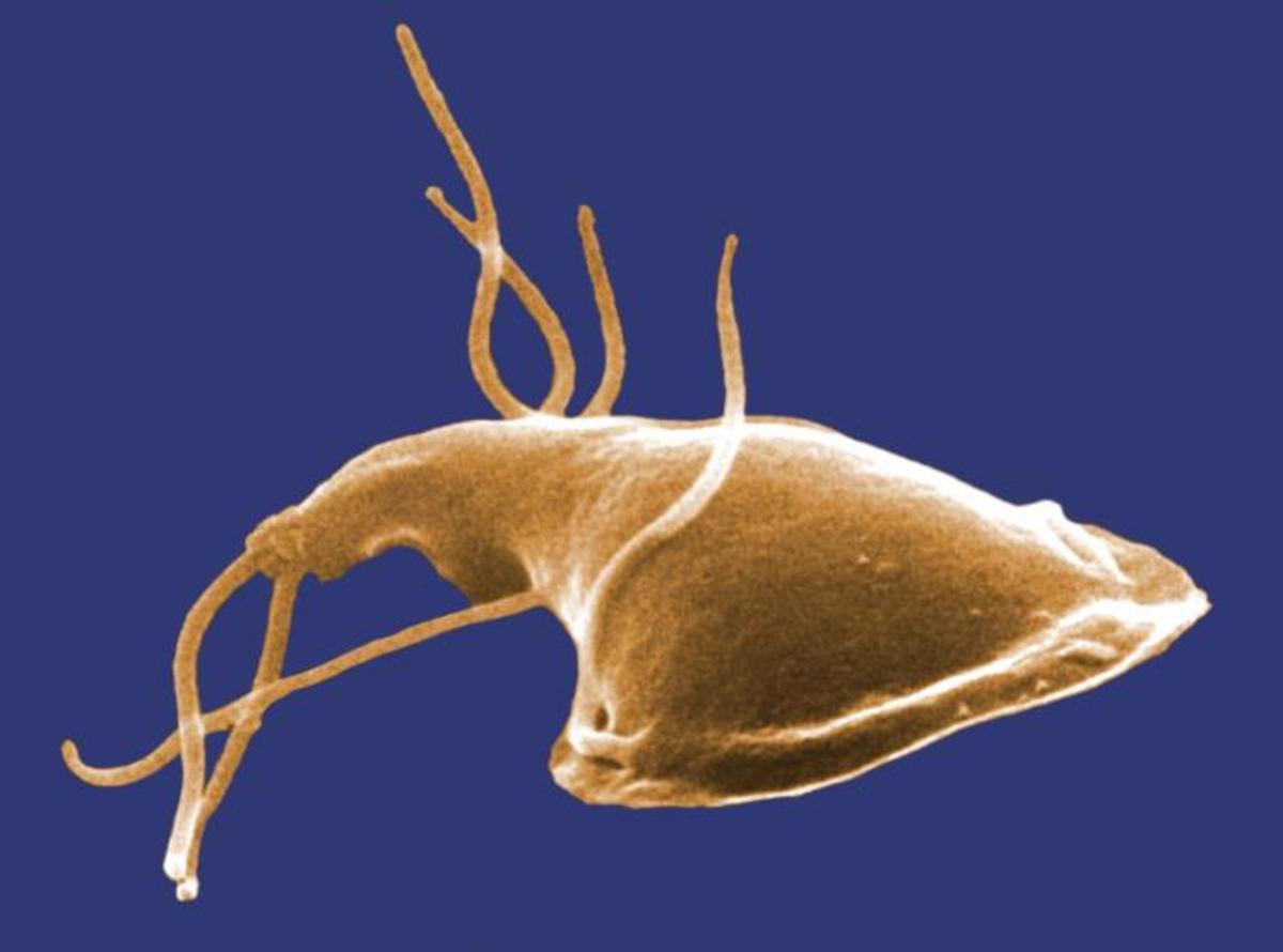 An electron micrograph of giardia.