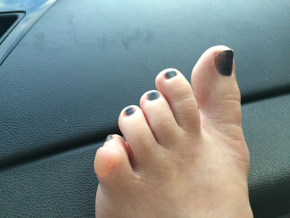 End result of 3 days with a crooked toe (from a prior surgery). I need to figure out a way to tape and pad this for future long hikes. The rocky terrain and constant twisting to navigate the mostly rock and boulder trails caused this.