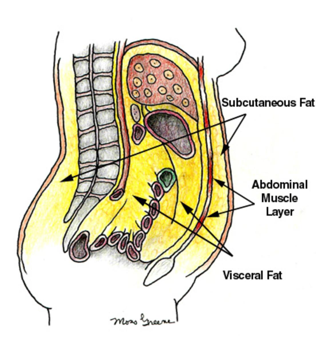 abdominal-obesity-metabolic-syndrome-aka-potbelly