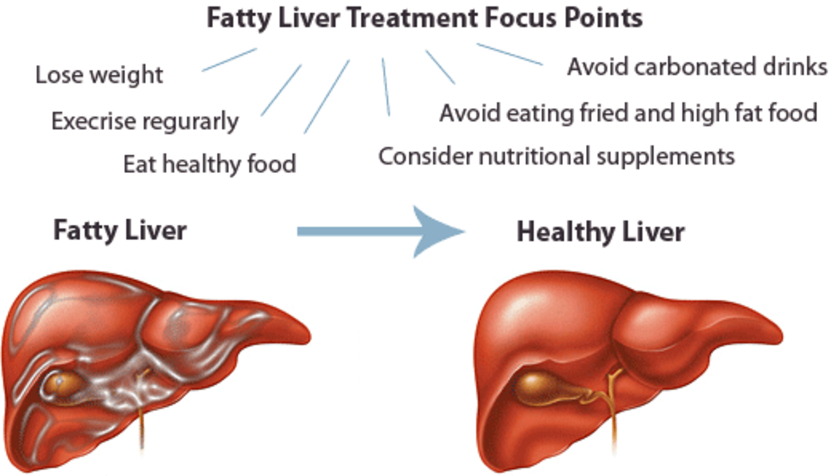 Fatty liver is associated with abdominal obesity