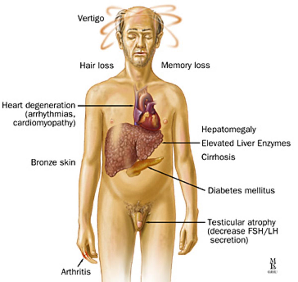 Hemochromatisis