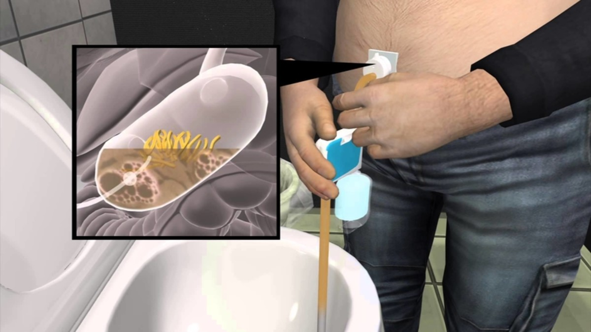 Would You Use a Food Sucking Device to Lose Weight?