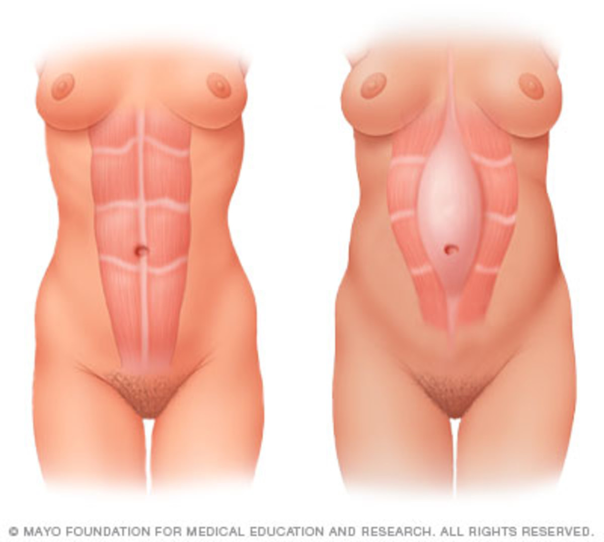 During pregnancy, the growing uterus sometimes causes the abdominal muscles to separate (diastasis recti).