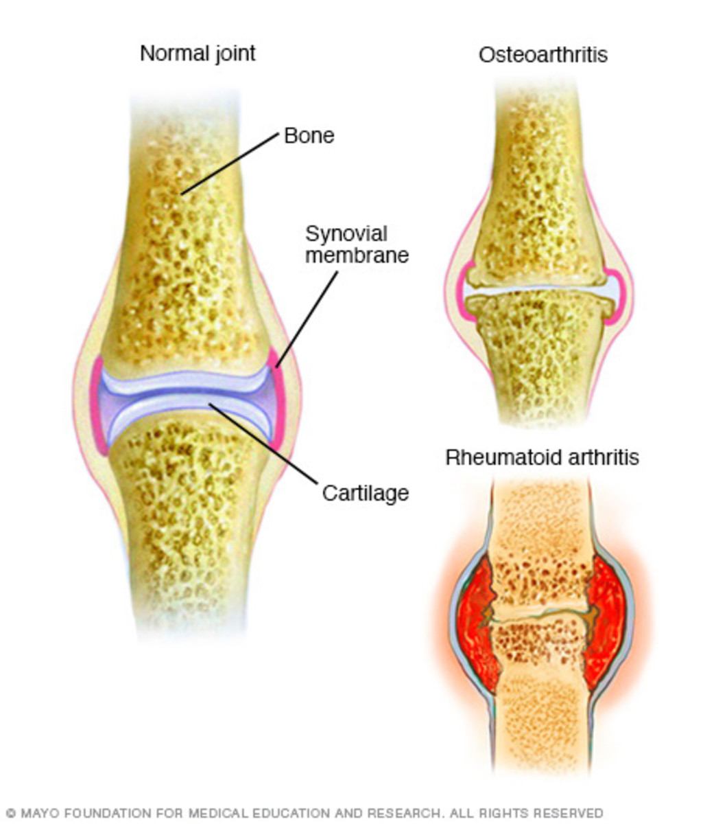 Osteoarthritis, the most common form of arthritis, involves the wearing away of the cartilage that caps the bones in your joints. With rheumatoid arthritis, the synovial membrane that protects and lubricates joints becomes inflamed, causing pain and