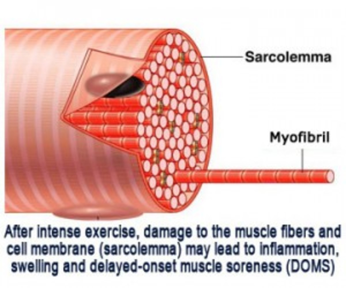 A Diagram with some other Causes for DOMS