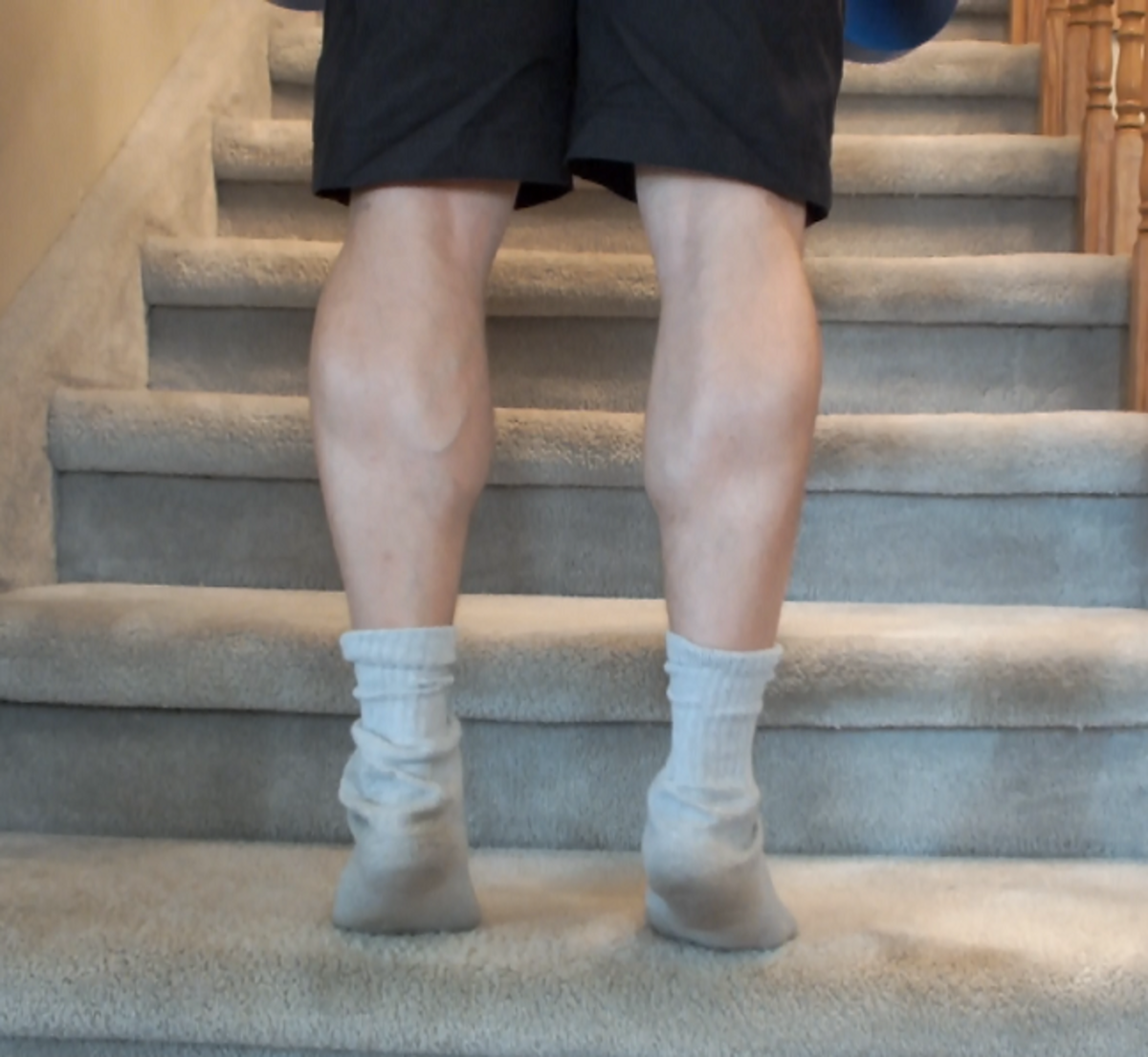 Large calf muscles from exercising.