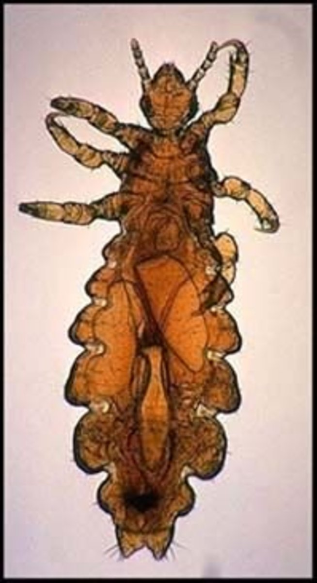 Shelters are often infested with lice or other parasites.