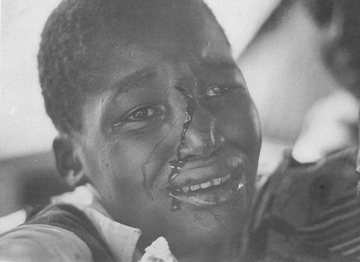 A child bleeding resulted from an encounter with the army at a burial for an unrest victim