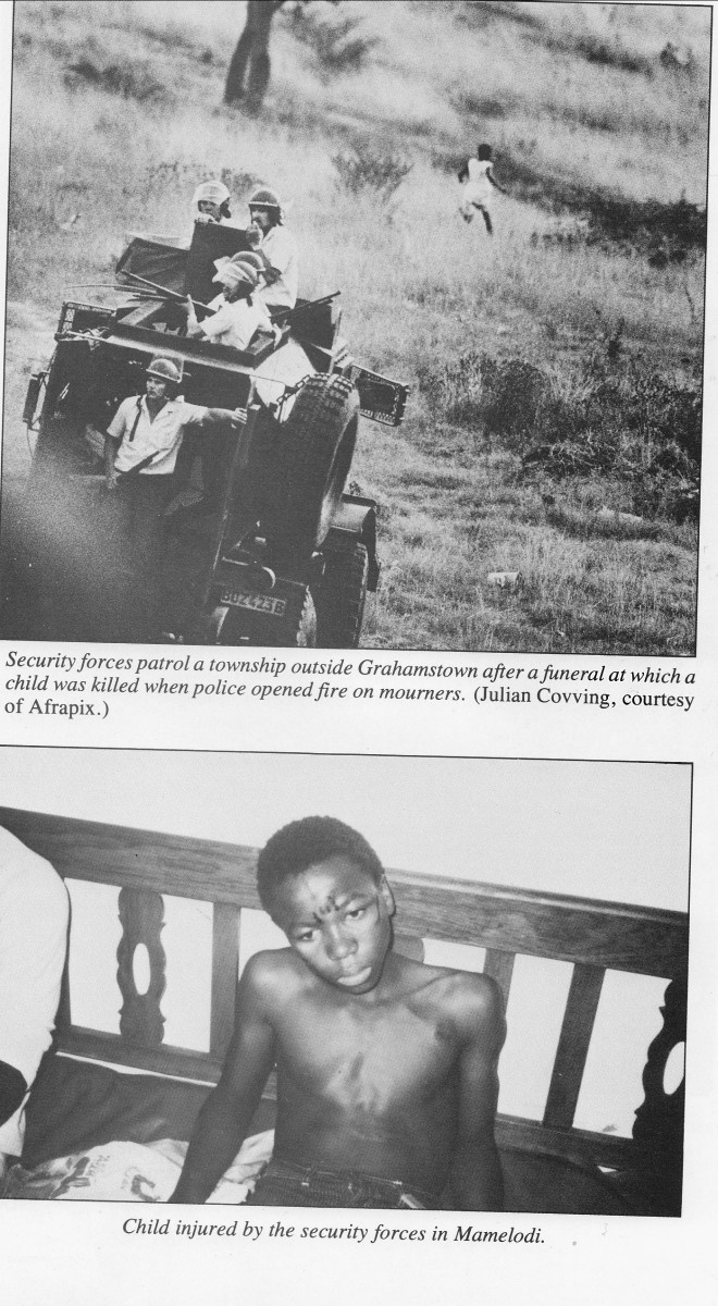 Top: Security Forces patrols a township outside Grahamstown after a funeral at which a child was killed when police opened fire on mourners. Notice a kid running way in the background. Bottom: Child injured by the security forces in Mamelodi