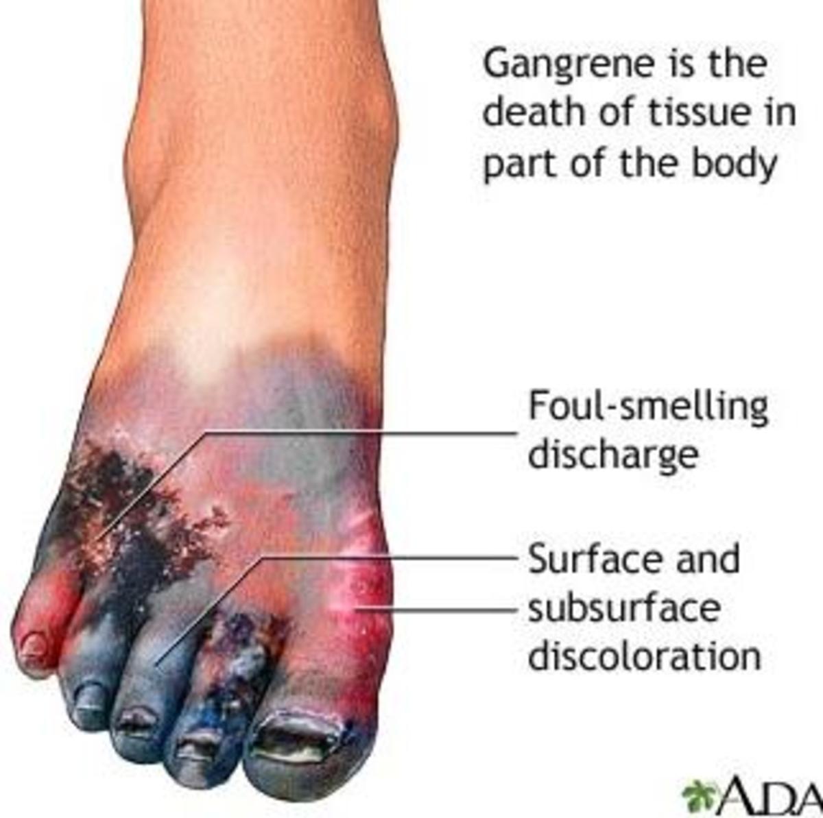 Dieseases Caused By Smoking