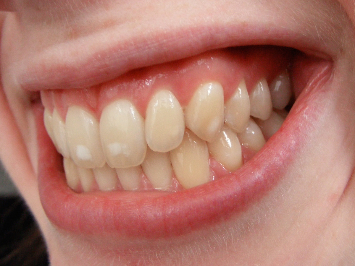 White spots on teeth of teens who never had braces are almost always due to fluorosis.