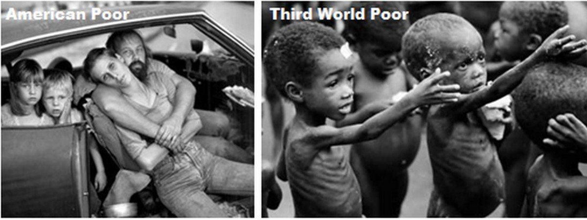 America's poor live in their cars; Third World poor live in squalor if they live at all.