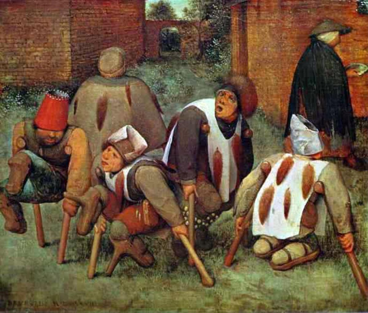 A 16th-century artistic representation of disability.