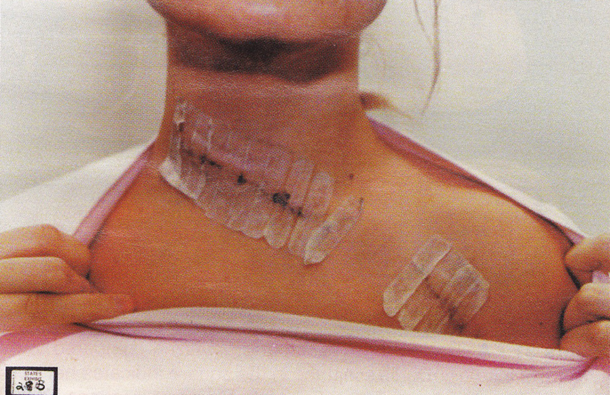 This one came within 2mm of her carotid artery.