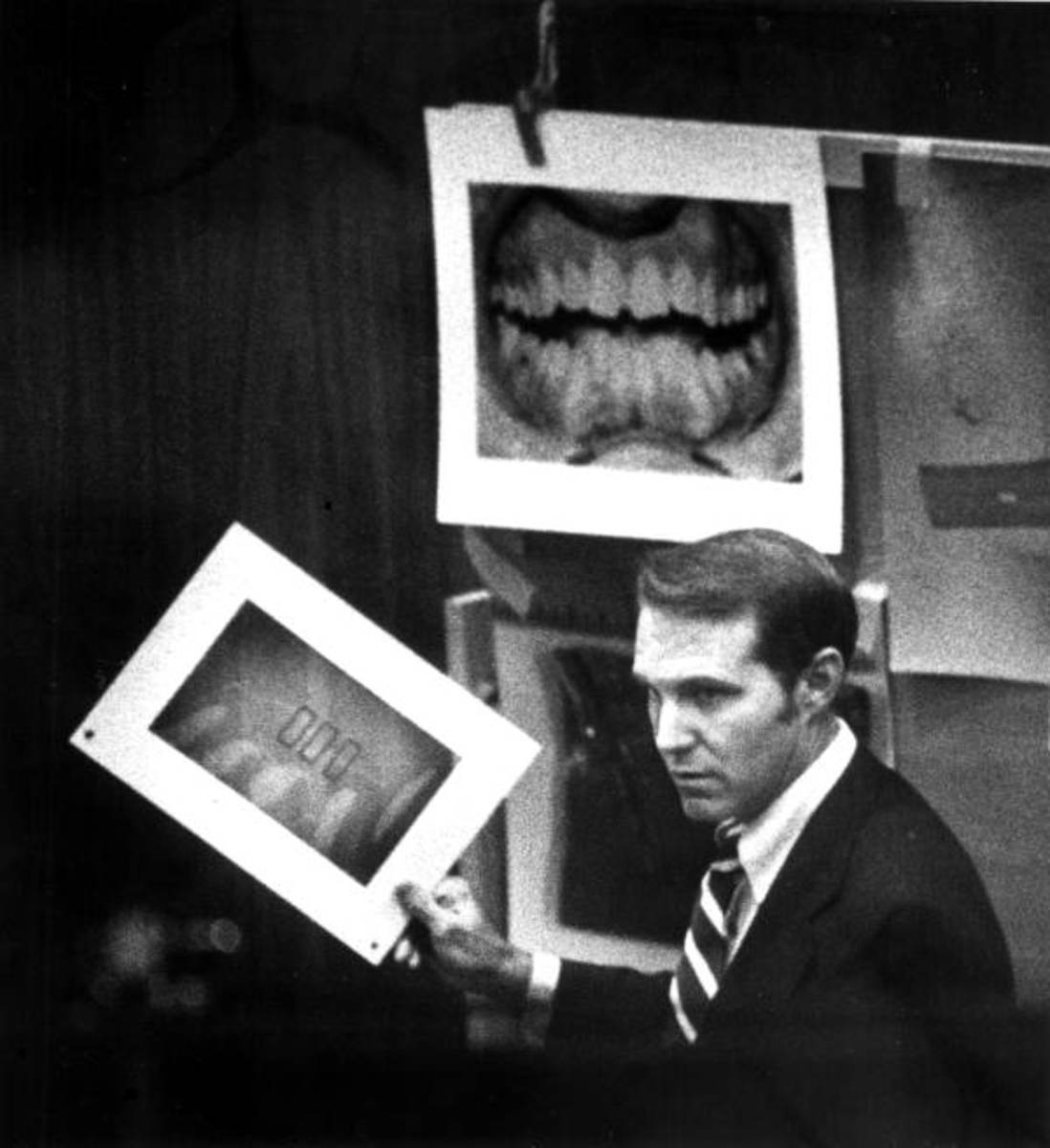 Forensic evidence presented in court comparing Ted Bundy's teeth to bite marks found on the victim.