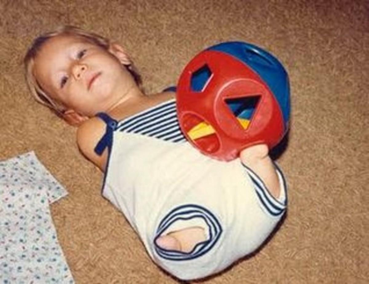 Nick Vujicic as a kid.
