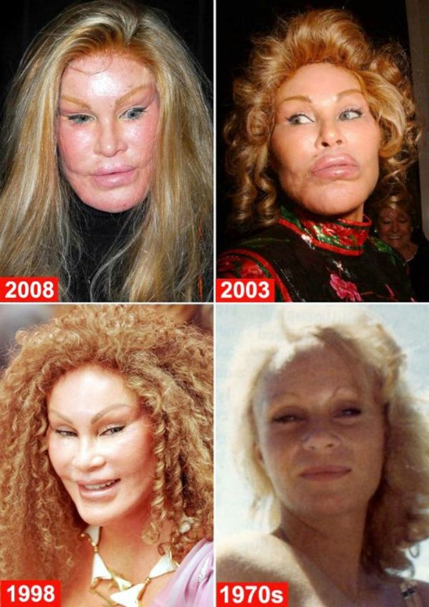 Jocelyn Wildenstein bride of Frankenstein body dysmorphia hates her body and face