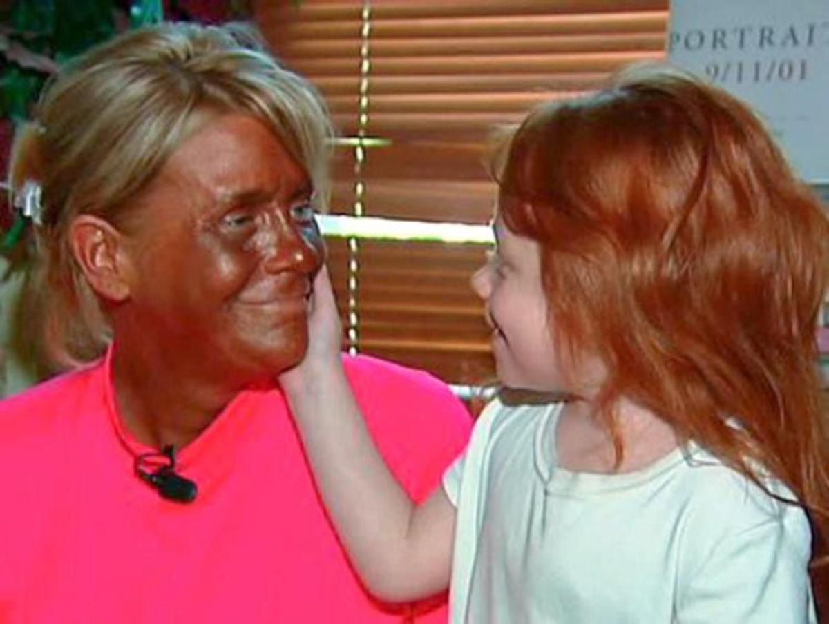"""This is how """"I"""" almost ended when I became hopelessly in tanning every day years ago."""