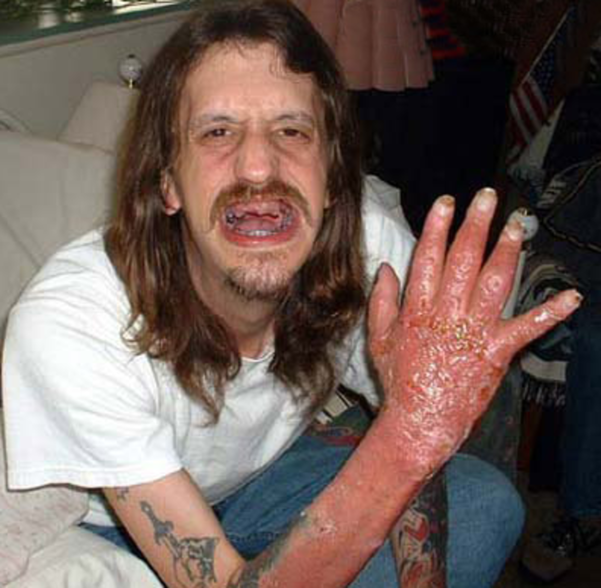 A survivor of a meth lab explosion