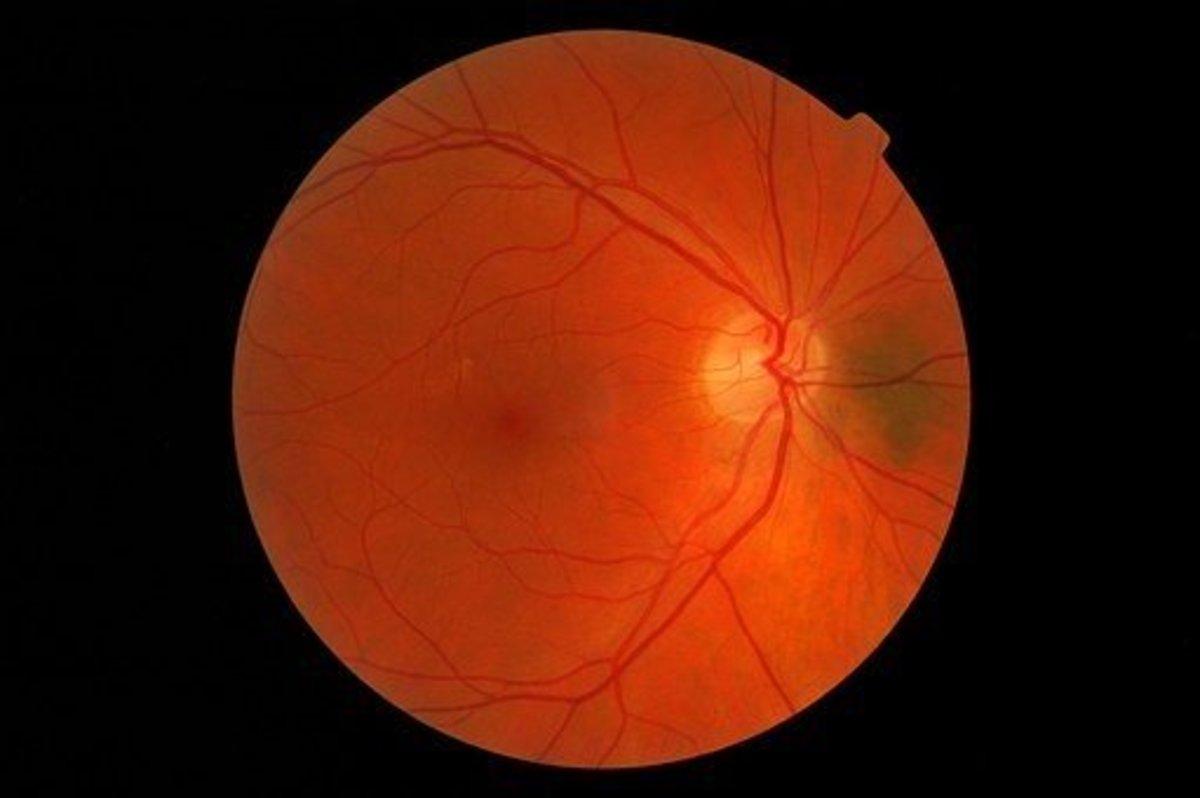Digital Retinal Imaging is regularly undertaken to assess the health of the eye.