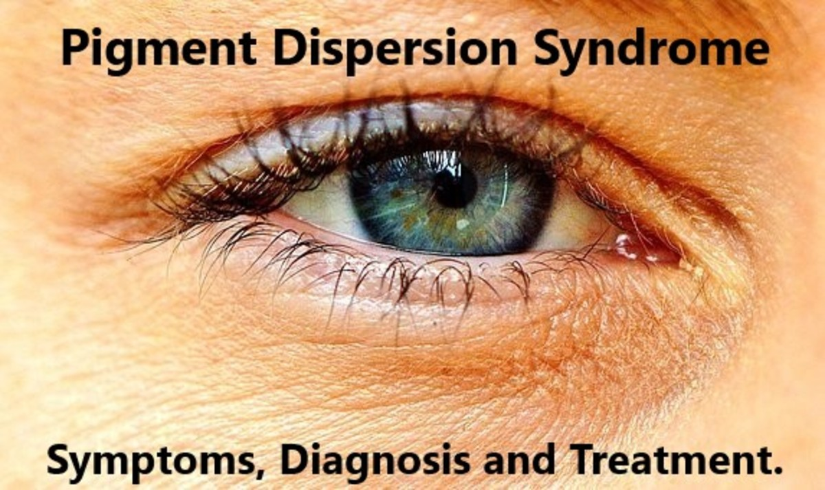 Pigment Dispersion Syndrome. A condition of the eye that requires long term treatment to hold back the effects of increased pressures of the eye on your vision.