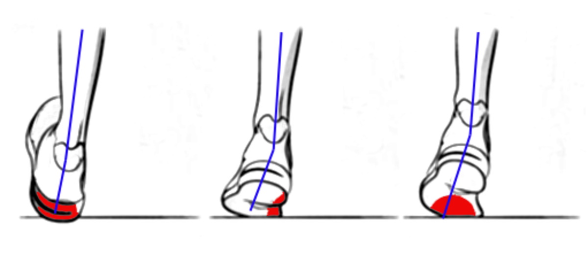 This diagram shows what overpronation while running looks like.