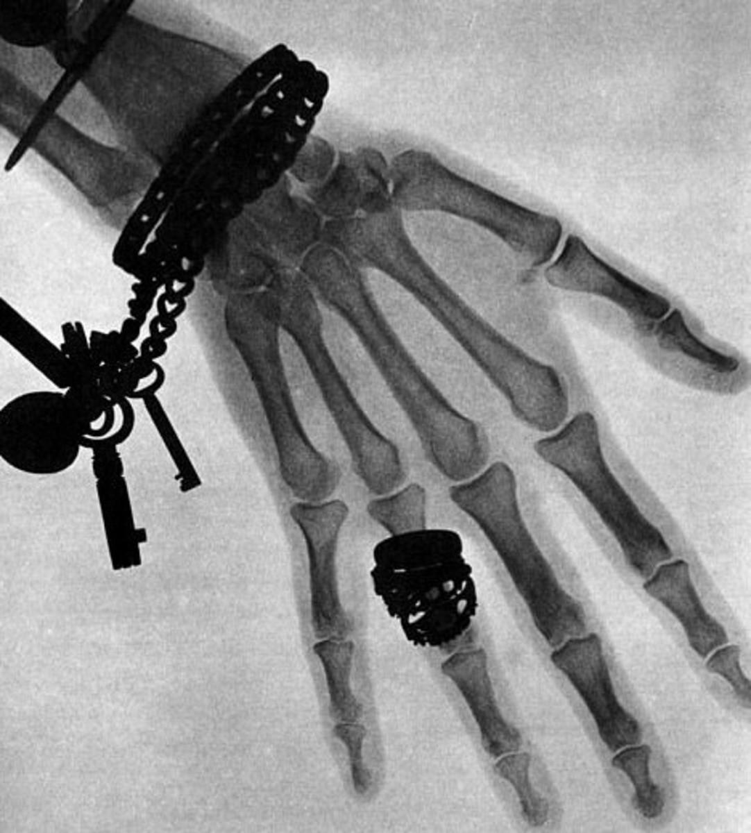 The hand of Wilhelm Röntgen's wife