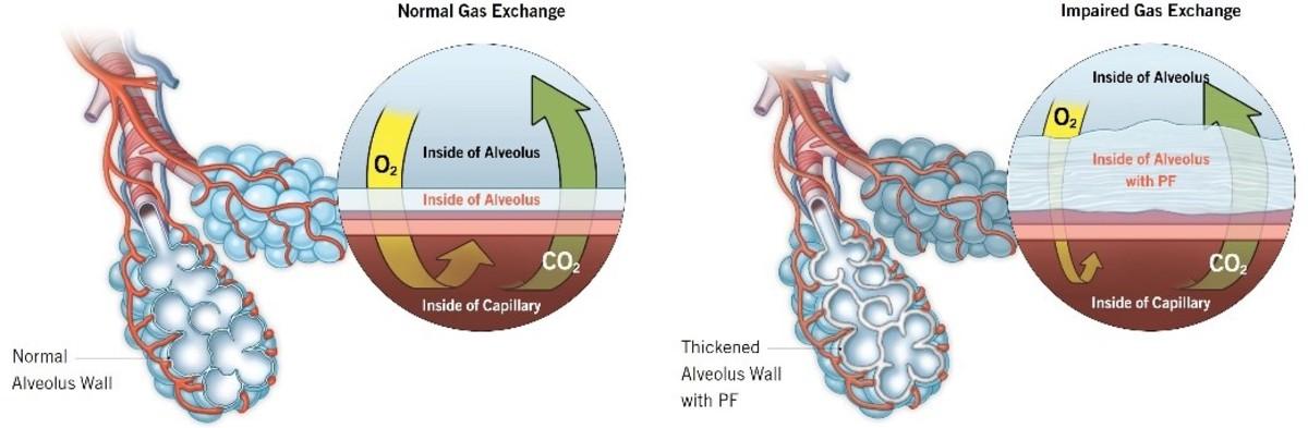 Pulmonary Fibrosis Defined