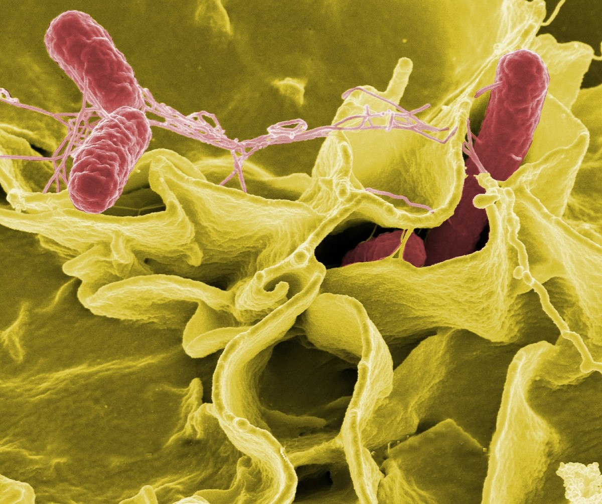 Salmonella bacteria (the red rods) can cause infections; the scene is real, but the colors are false