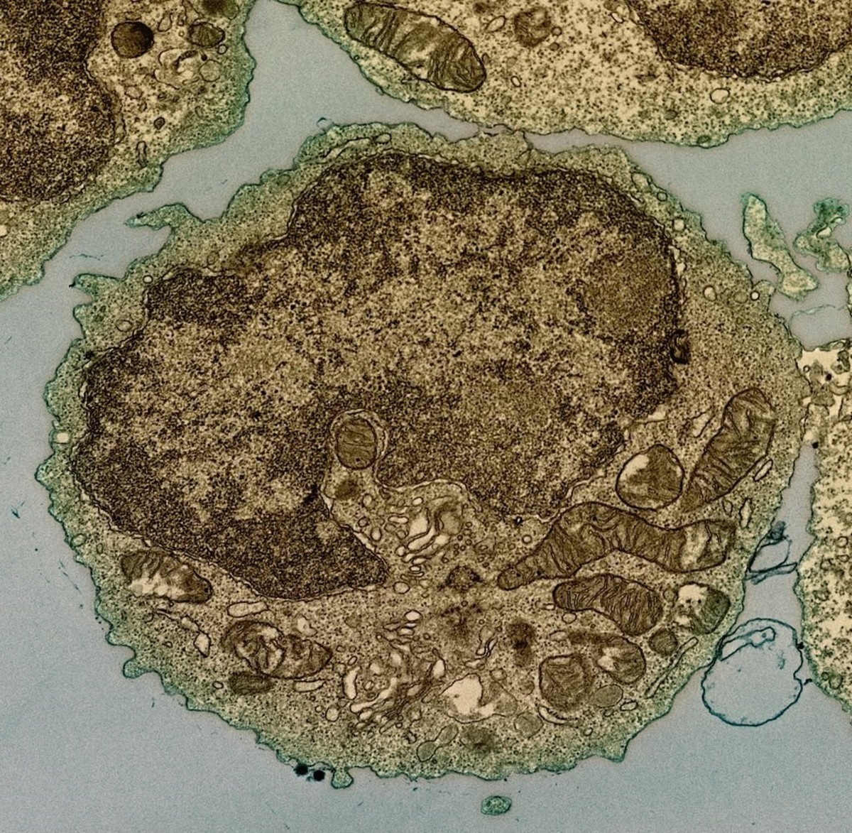A transmission electron micrograph of the interior of a B lymphocyte from a human