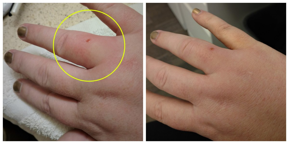 This is the result—swelling, redness, and pain. Fun times!
