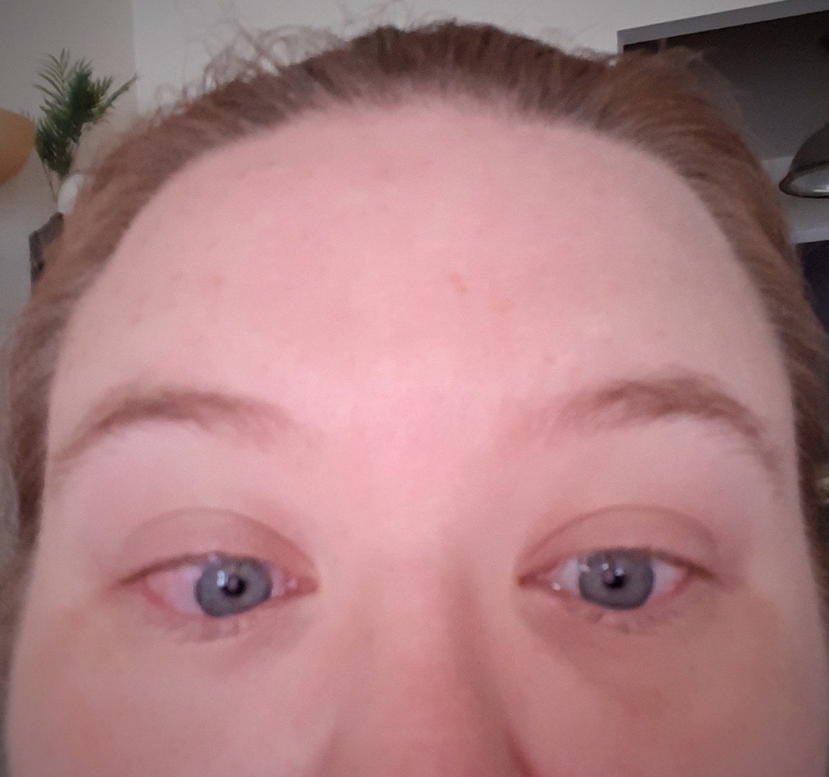 To decrease puffiness, I cut up a cucumber and placed the slices on my eyes. What resulted was itchiness, redness, and pain. Never again.