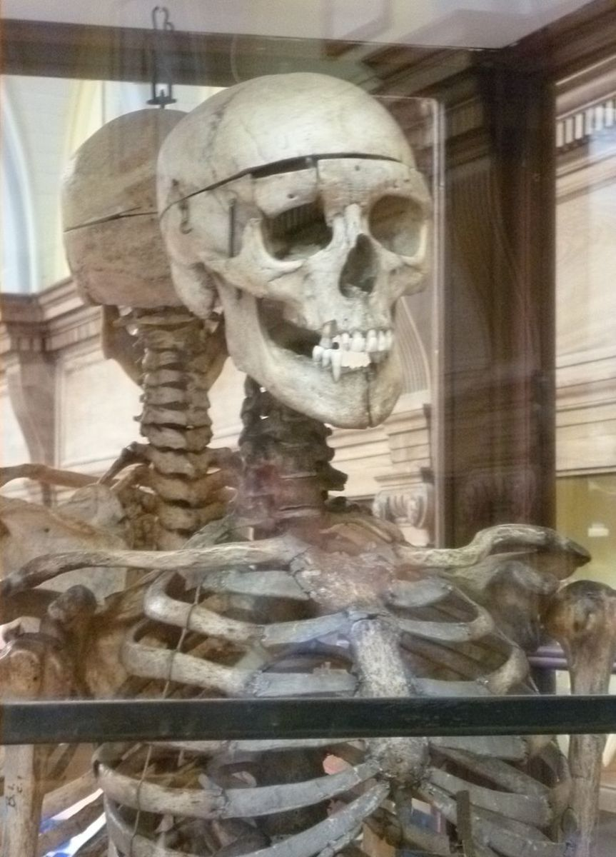 grave-robbers-worked-for-science-and-themselves