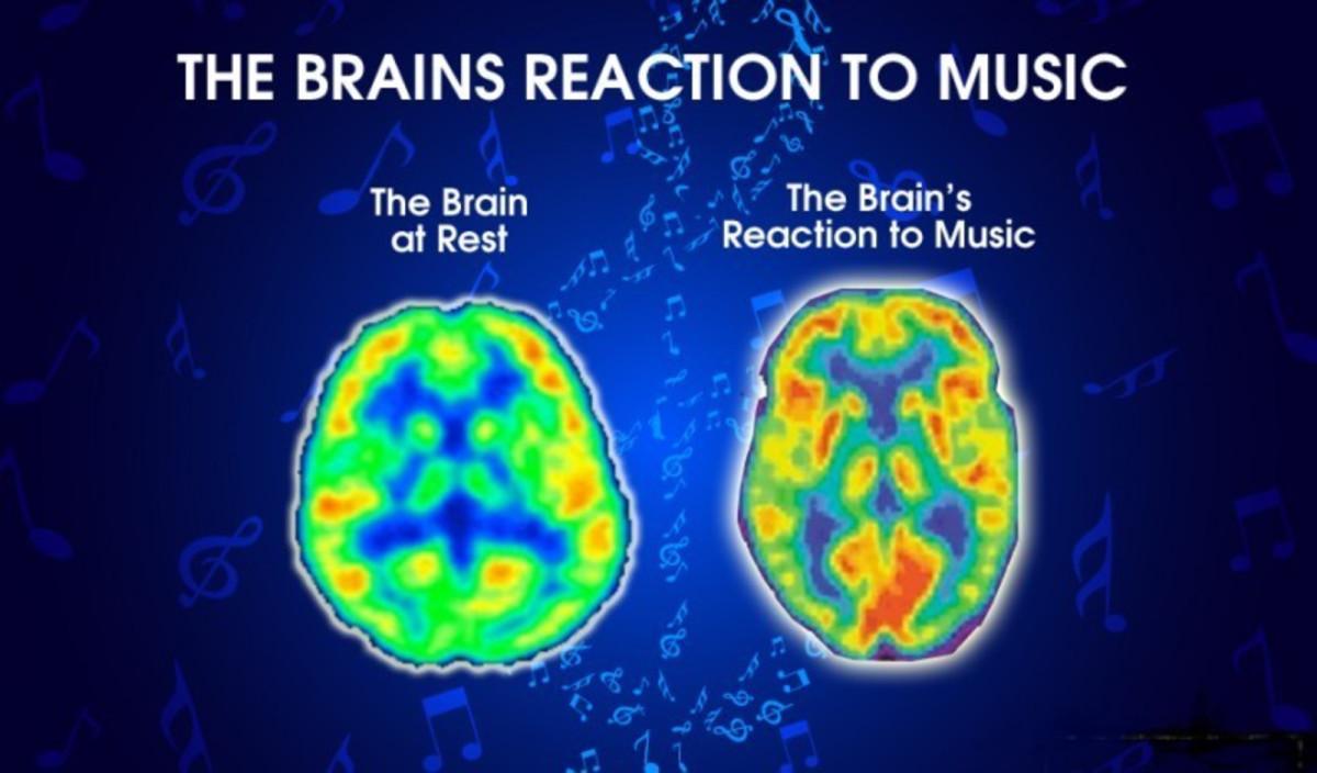 10-reasons-why-i-love-music