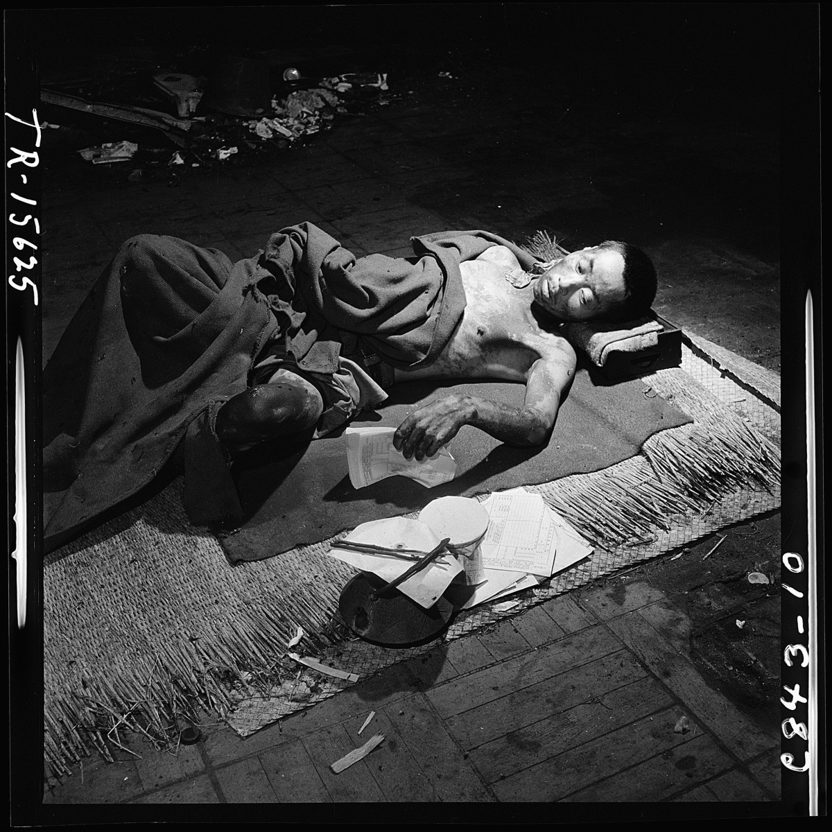 Injuries from Hiroshima bomb
