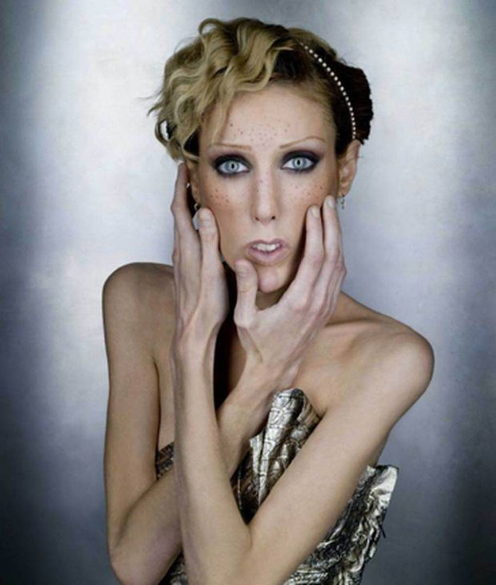 Isabelle Caro, a French model who became a symbol of the fight against anorexia when she was photographed naked for a controversial advertising campaign, has died at the age of 28