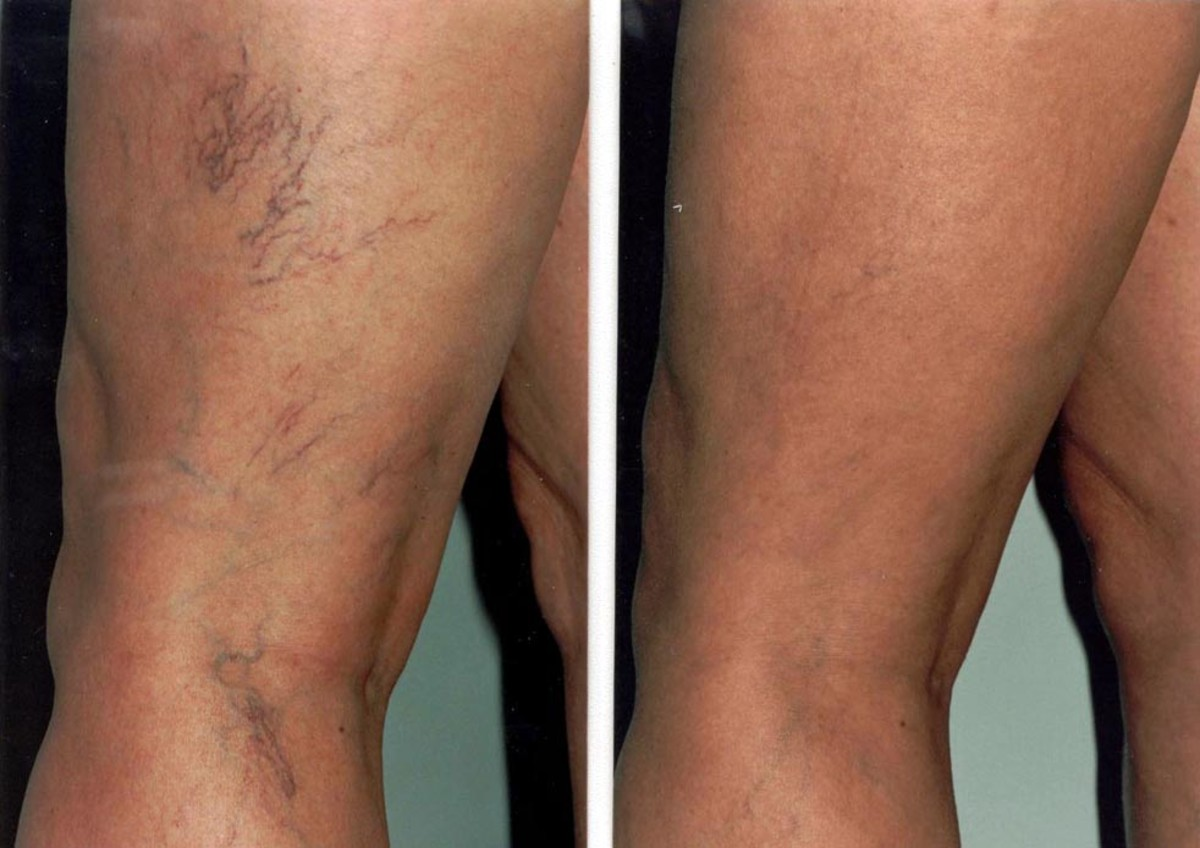 Varicose Veins: What are they and how do you get rid of them