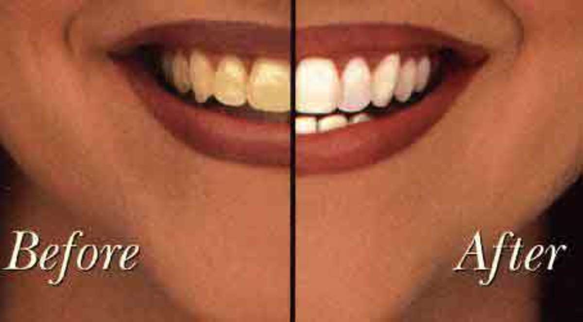 Best Smile: Zoom vs. BriteSmile vs. Rembrandt One-Hour