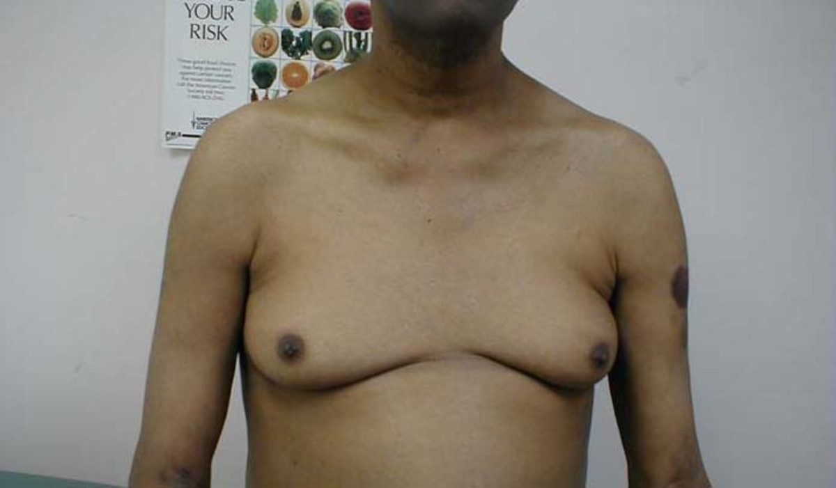 men-in-bras-the-medical-reason