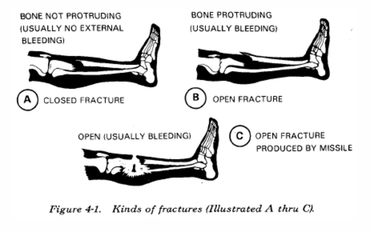first-aid-basics-broken-bones