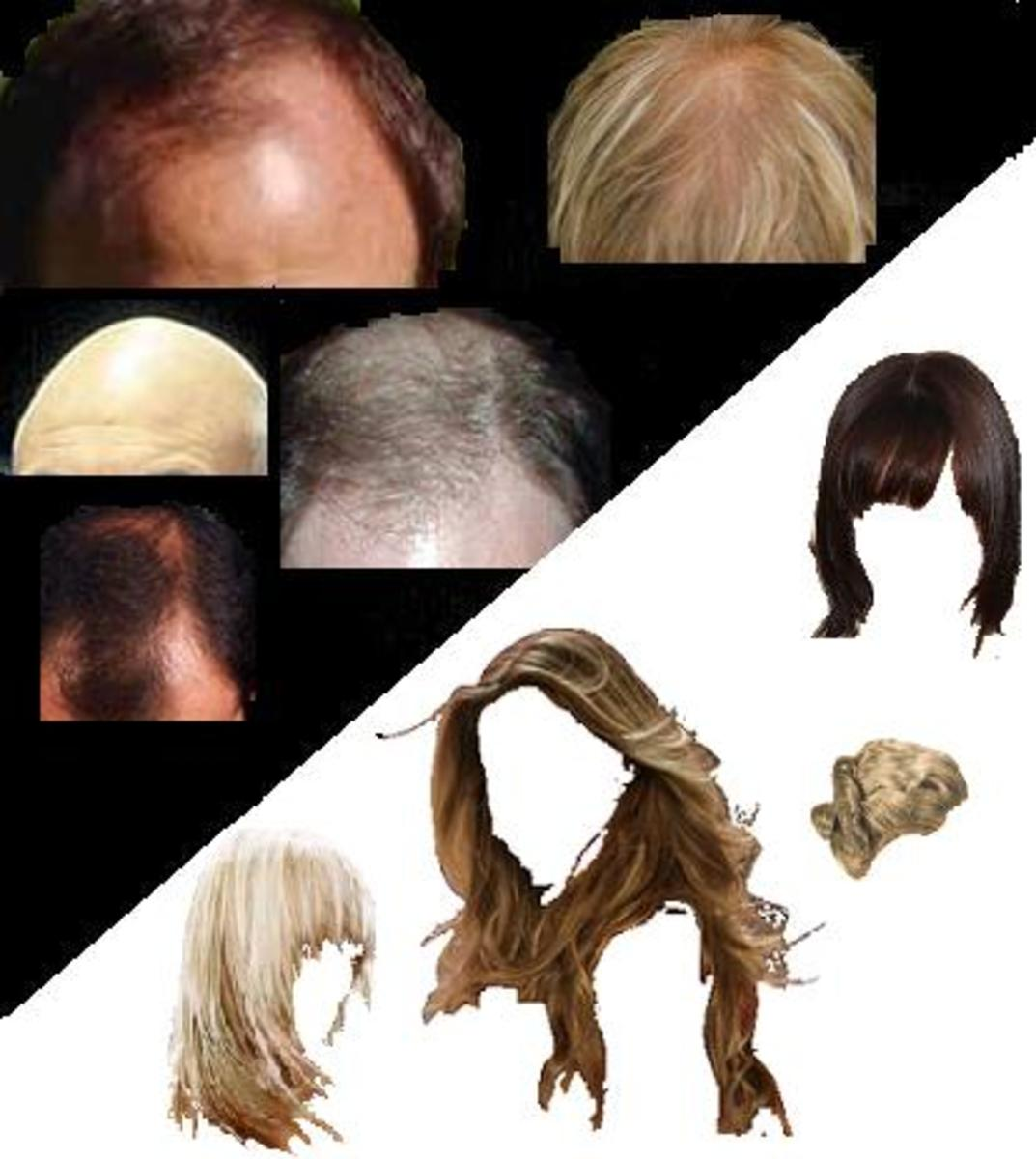 This is why it's called male pattern baldness and not chick pattern baldness.