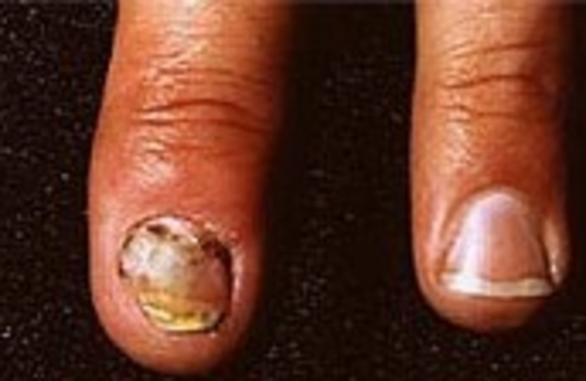 Natural Remedies For Discoloured Fingernails