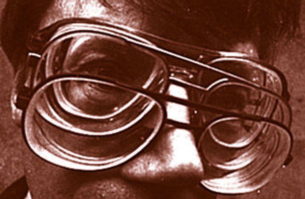 Temporary Nearsightedness or Myopia