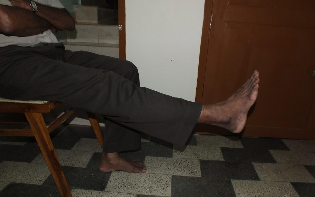frenkels-exercises-for-lower-limbs