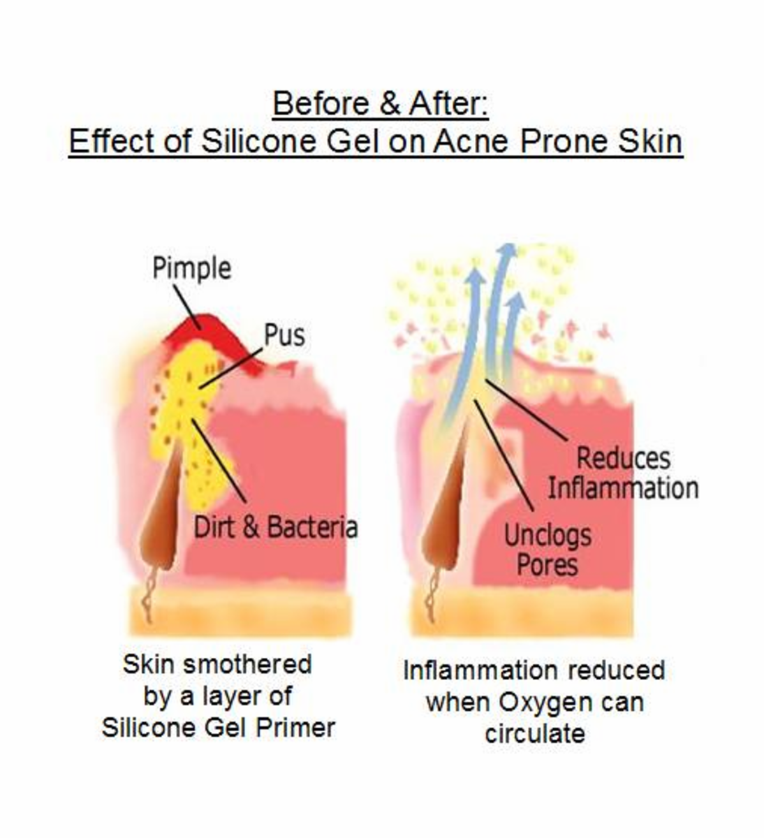 Example: Why Silicone Primer is Bad for Oily Skin